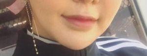 アンシ整形前目鼻唇アゴと豊胸手術