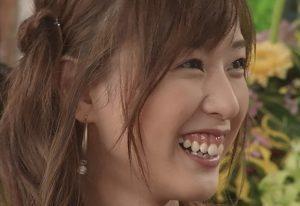 戸田恵梨香は歯茎治した?手術後の画像と比較!タバコが原因で黒い?